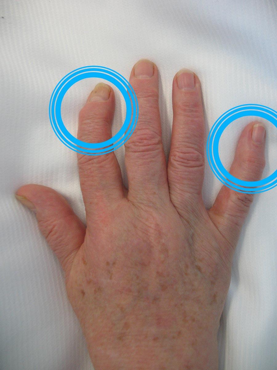 Behandlungsspektrum der Hand- und Unfallchirurgie Bad Mergentheim